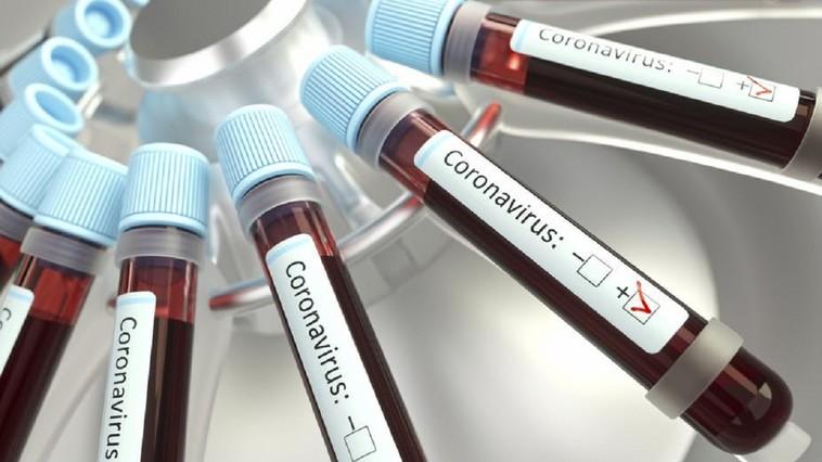 Coronavirus in Romania, 26 August! Autoritatile au comunicat cifrele momentului