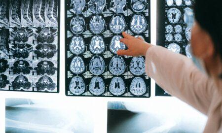 """Urmele pe care le lasă Covid-19 după vindecare. Neurochirurg: """"Apa trece, pietrele rămân"""""""