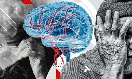 Studiul care răstoarnă tot ce se știa despre Alzheimer. Cercetătorii spun că are mare legătură cu personalitatea